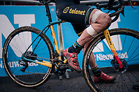 the bruised knee of VAN LOY Ellen (BEL/Telenet Fidea Lions) post-race<br /> <br /> Brussels Universities Cyclocross (BEL) 2019<br /> Women's Race<br /> DVV Trofee<br /> &copy;kramon