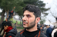 Pictured: One of the refugees that was caught in the violence with wis bleeding face Monday 29 February 2016<br /> Re: A crowd of migrants has burst through a barbed-wire fence on the FYRO Macedonia-Greece border using a steel pole as a battering ram.<br /> TV footage showed migrants pushing against the fence at Idomeni, ripping away barbed wire, as FYRO Macedonian police let off tear gas to force them away.<br /> A section of fence was smashed open with the battering ram. It is not clear how many migrants got through.<br /> Many of those trying to reach northern Europe are Syrian and Iraqi refugees.<br /> About 6,500 people are stuck on the Greek side of the border, as FYRO Macedonia is letting very few in. Many have been camping in squalid conditions for a week or more, with little food or medical help.