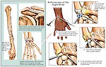 Fractured (Broken) Wrist Bones with Arthroscopic Surgery Repair. This medical illustration series pictures a humerus, clavicle and wrist all of which have healed with post-traumatic arthritis. The wrist arthroscopy is the main focus of the exhibit, illustrating the debridement of the thickened synovium, TFCC, chondral defect.