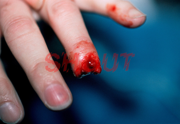 Fingertip removed following accident at work. This image may only be used to portray the subject in a positive manner..©shoutpictures.com..john@shoutpictures.com