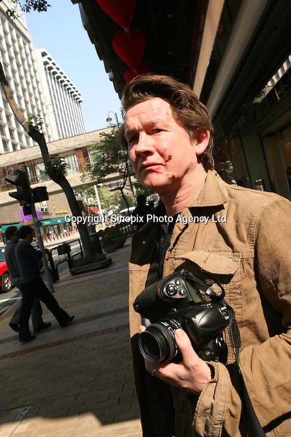 Photo taken moments after an assault on photographer Richard Jones in Hong Kong 15th Jan 2014 by Grace Mugabe in Hong Kong.<br /> <br /> photo by Sinopix