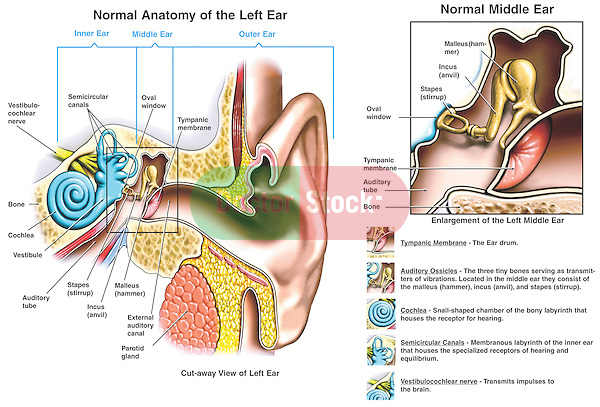 Accurately depicts the normal anatomy of the ear. Cutaway of the external auditory canal displaying the outer, middle and inner ear.  Labels: tympanic membrane (ear drum), malleus (hammer), incus (anvil), stapes (stirrup), auditory (eustachian) tube, oval window, vestibule, cochlea, vestibulocochlear nerve and semicircular canals. Shows auditory ossicles (bones) of the middle ear. Describes the tympanic membrane, auditory ossicles, cochlea, semicircular canals and vestibulocochlear nerve.