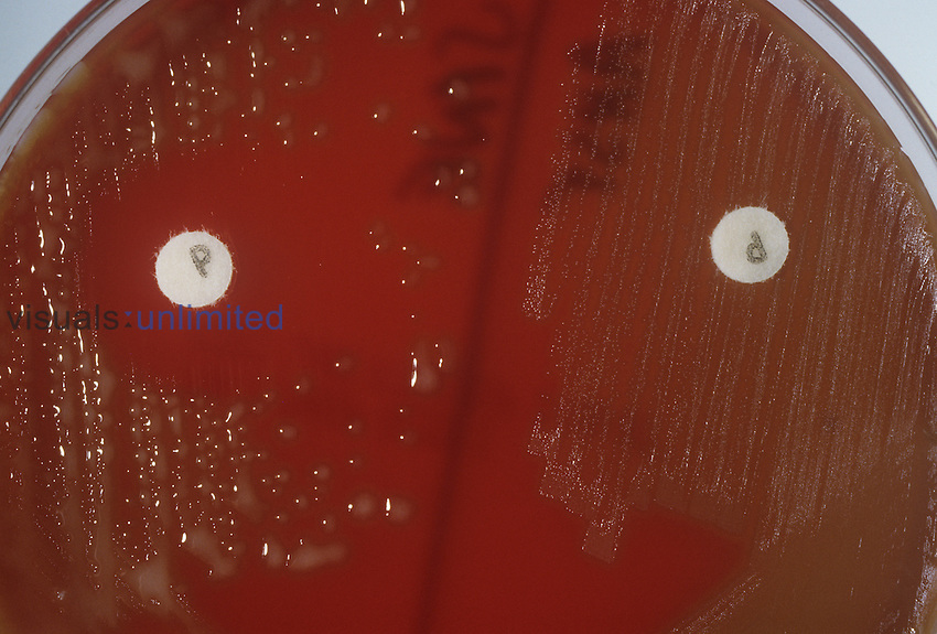 Culture plate of Streptococcus pneumoniae Bacteria showing penicillin disks and resistant and non-resistant strains.