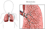 This medical exhibit illustrates a detailed view of the bronchioles of the lung.
