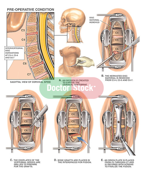 Neck Pain - C3-4, C5-6 and C6-7 Disc Herniations with Multi-level Discectomy (Diskectomy). Shows the cervical spine with disc herniations at C3-4, C5-6 and C6-7 with impingement of the spinal cord. Surgical steps include removal of the herniated disc material; preparation of  the vertebral bodies for bone grafts;  placement of bone grafts in the vertebral interspaces; and the location and extent of an Orion fixation plate secured in place with surgical screws for spinal fusion.