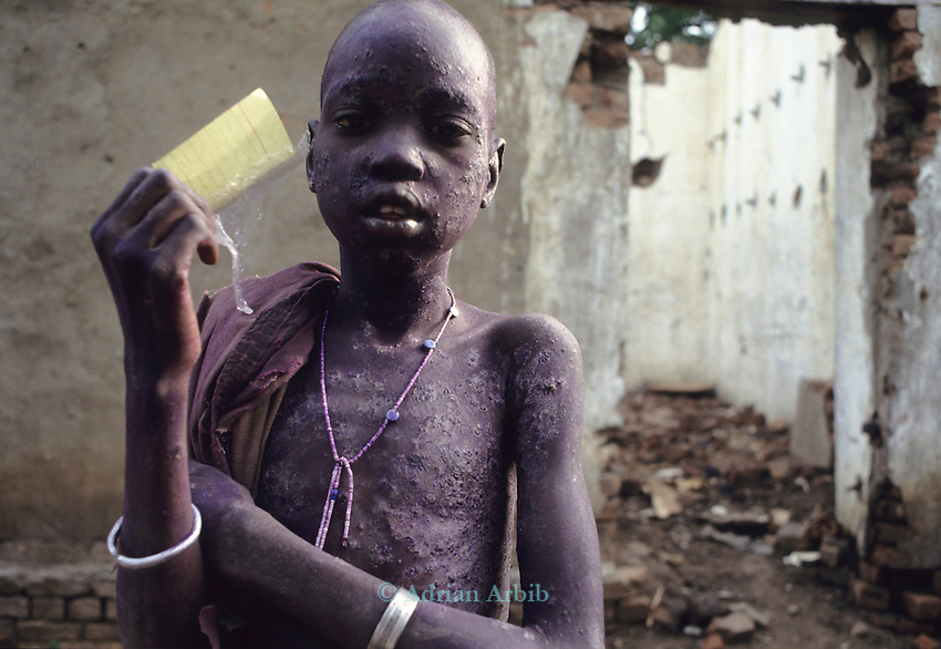 A Dinka child  with a severe skin infection in Thiet feeding camp in Southern Sudan. Hundreds of Dinka tribes people having had their villages bombed and burnt  by the Khartoum forces  have travelled hundreds of miles to  avoid  starvation a the feeding centre.