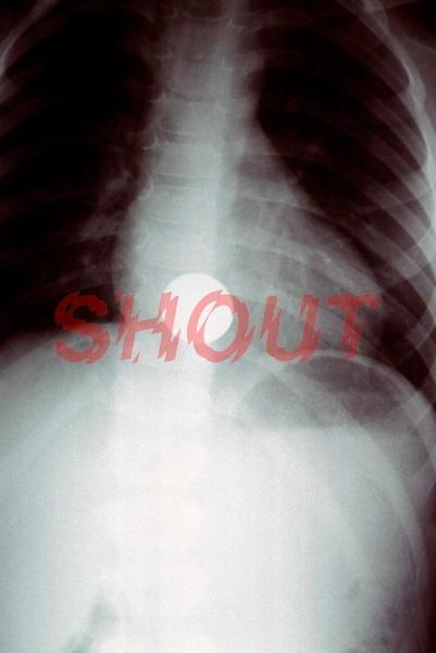 An x-ray showing a swallowed coin in a patients oesophagus, the part of the alimentary canal that connects the throat to the stomach. This image may only be used to portray the subject in a positive manner..©shoutpictures.com..john@shoutpictures.com