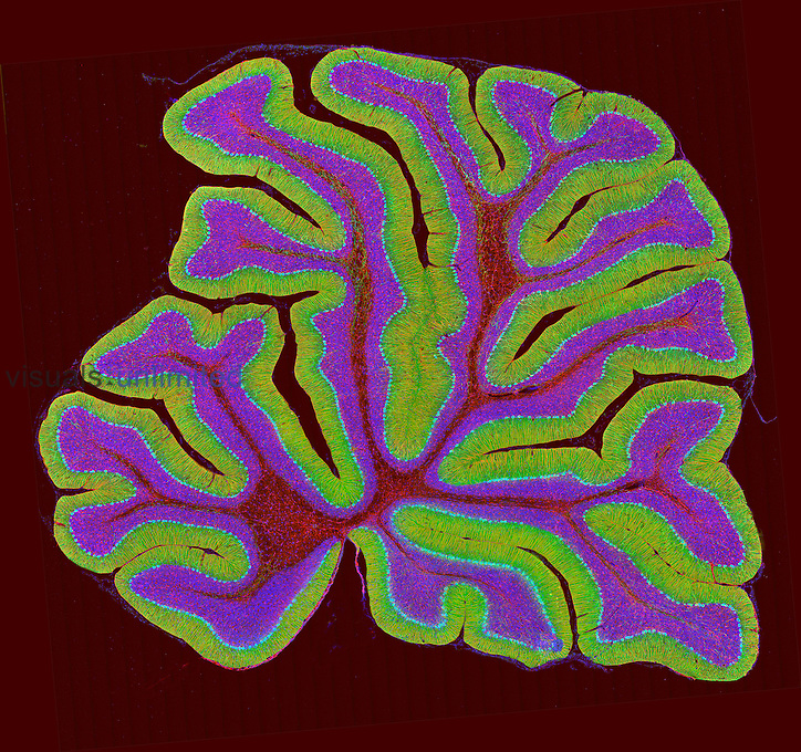 A section of the cerebellum fluorescently labeled for the IP3 receptor found in Purkinje neurons (green), GFAP in glial cells (red) and DNA in cell nuclei (blue). Confocal 2-photon microscopy.