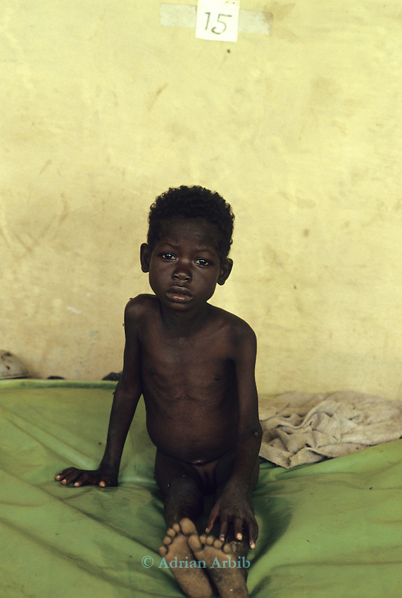 A Dinka girl in a makeshift hospital at Thiet feeding camp in Southern Sudan. Hundreds of Dinka tribes people having had their villages bombed and burnt  by the Khartoum forces  have travelled hundreds of miles to  avoid  hunger and death.
