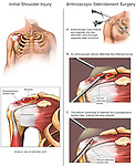 Torn Rotator Cuff Ligaments with Arthroscopic Debridement Surgery. This medical exhibit illustrates a partial rotator cuff tear of the right shoulder with arthroscopic debridement surgery.