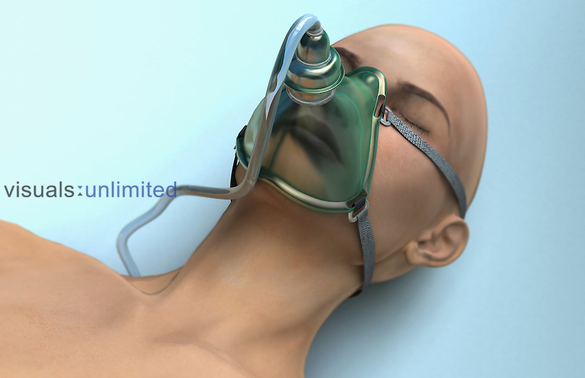 An image of a female patient wearing a gas mask. Gas-masks are used as a form of non-invasive ventilation used in anesthesia and resuscitation. Royalty Free