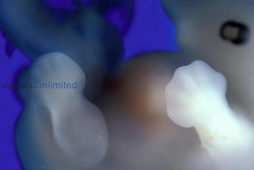 Human Embryo at 40 Days. LM