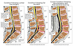 Progression of Injury to the Lumbar Spine with Herniations, Compromised Nerve Roots and Eventual Decompression Laminectomies