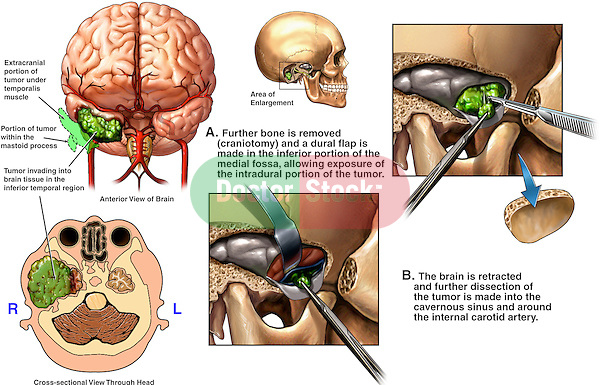 This multi image medical exhibit reveals details of the surgical removal of an invasive tumor to the tight temporal region of the brain. It features the following specifics: 1. Anterior and cut-section views of the brain detailing the tumor location, 2. Open surgical exposure with superficial tumor removal, and finally, 3. Deep dissection and removal of additional tumor material.