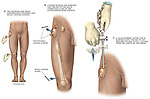 Leg Surgery - Removal of Right Femoral Intramedullary Rod. This medical exhibit illustrates surgical steps from the removal of the right femoral intramedullary rod from the leg of an African-American male patient.