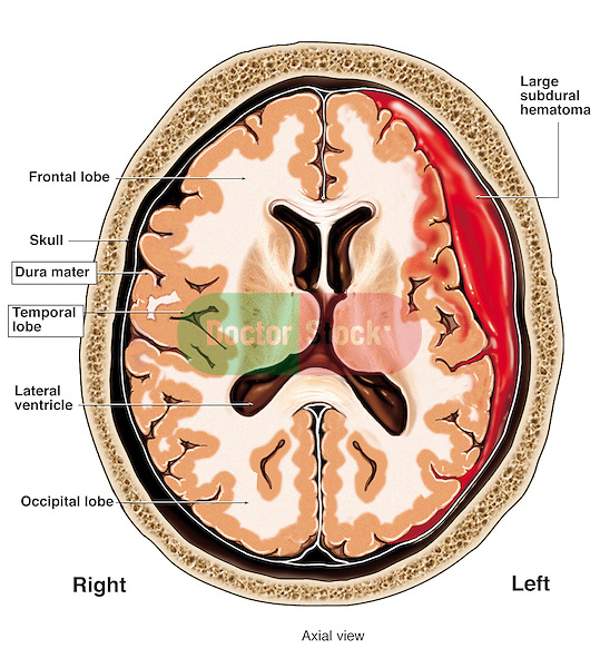 Head Injury - Subdural Hematoma. Graphically depicts a cut-away view of the brain showing a large subdural hematoma (intracranial hemorrhage) within the skull. The bleeding increases the pressure on the brain, compressing the left frontal and temporal lobes.