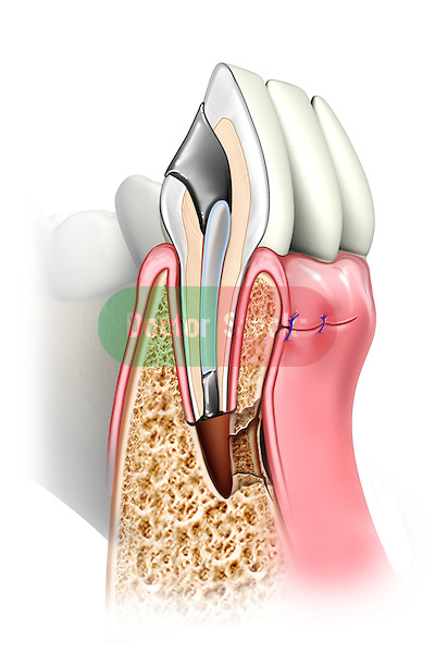 This stock medical image reveals a single lower incisor cut in section revealing the post-operatve appearance following a typical apicectomy.
