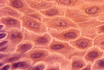 Skin surface epithelial cells showing connecting strands or intercellular junctions. LM X453.