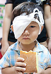 A child has a snack after successful cataract surgery at Angkor Children's Hospital in Siem Reap, Cambodia.