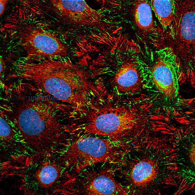 Indirect immunofluorescent images, of NIH-3T3 cells ,murine fibroblasts,, were acquired by confocal microscopy.  Focal adhesions, shown in red, are the cellâ??s anchoring points.  Fibrillar adhesions, shown in green, translocate out of focal adhesions pulling fibronectin molecules ,extracellular matrix protein,, thus facilitating fibrillogenesis.  Cell nuclei are shown in blue. X63