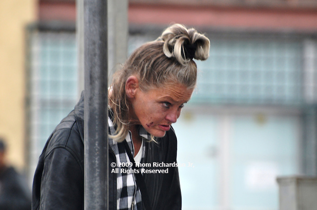 She seems to be suffering from a neck or back injury which restricts her ability to move her head as she tries to look around. The sores on her face are testament to her struggle.
