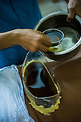 A worker pours hot oil on the back during the treatment at the Nagarjuna Ayurvedic Centre in Kochi, Kerala, India.
