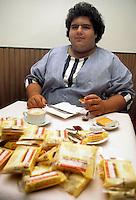Obesita?.Obesity....