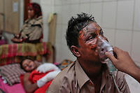 A relative holds an oxygen mask on Mohammad Hanif, 35, victim of a firebombing, at a hospital in Dhaka, Bangladesh.