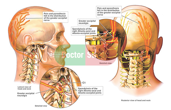 Headache Pain - Facet Syndrome with Occipital Neuralgia.