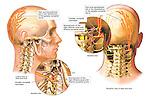 Headache Pain - Facet Syndrome with Occipital Neuralgia.
