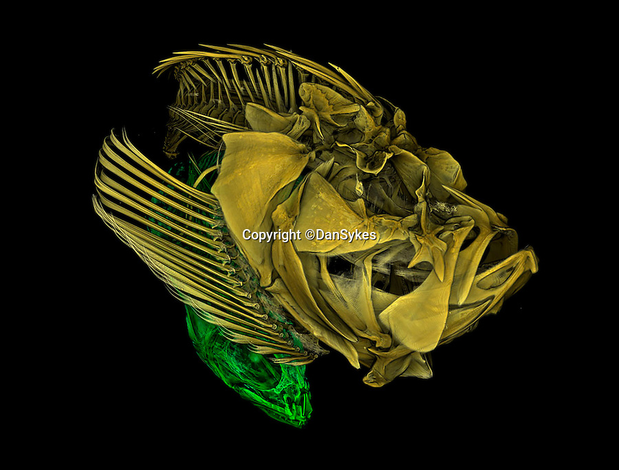 BNPS.co.uk (01202 558833)<br /> Pic: DanSykes/RPS/BNPS<br /> <br /> Micro-CT scan of a stonefish (Synanceia verrucosa) in yellow and prey inside its stomach in green.<br /> <br /> A set of stunning photographs that reveal the natural beauty in science are set to go on show to the public.<br /> <br /> The 100 incredible images are the shortlisted entries for the Royal Photographic Society's International Images for Science competition and highlight how important photography is for academics.<br /> <br /> The shots form a dazzling display of the world's best scientific photography from various disciplines and from scientists all over the world.