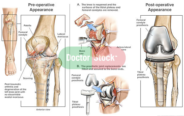 Development of Post-traumatic Arthritis with Total Replacement of the Left Knee.