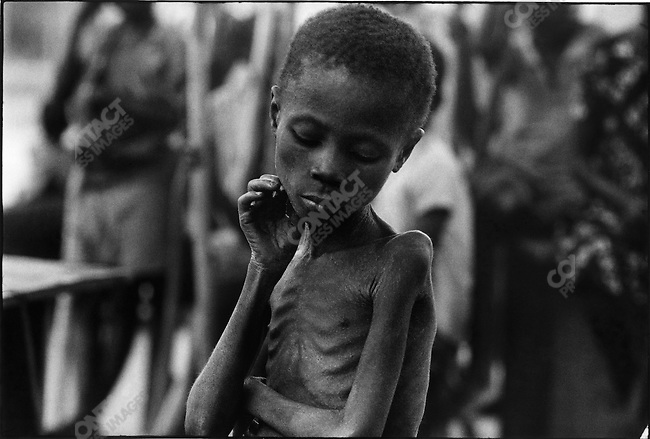 An Ibo child, during the famine due to the civil war,  Biafra, Nigeria, July 1968