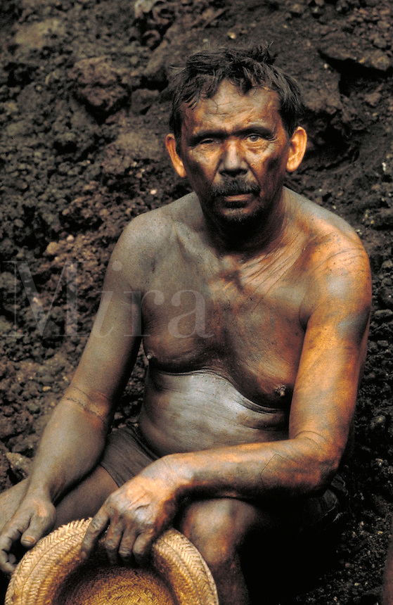 A one-eyed, male Brazilian gold miner, nearly naked and covered with mud, rests in the dirt. occupations, trades, mining, portrait, man, minerals. Brazil Serra Pelada.