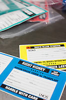 Labels for donated right and left kidneys lay on a table in a supply room at the New England Organ Bank, an organ procurement organization based in Waltham, Massachusetts, serving the greater New England area.