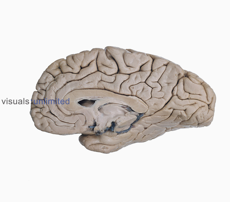 Medial surface of the right human cerebral hemisphere with the brainstem removed through the midbrain to show the lateral ventricle, corpus callosum, thalamus, hypothalamus, and pineal body.