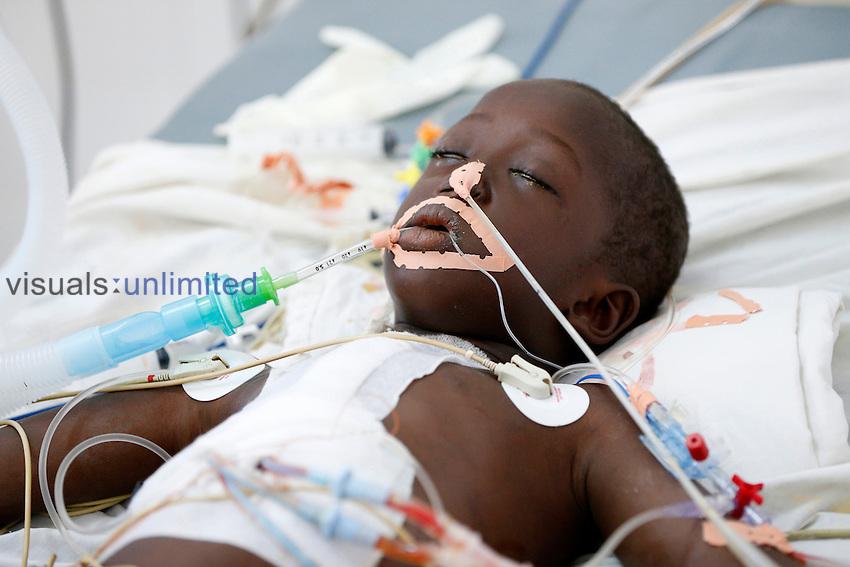Child in ICU, Fann Hospital, Dakar, Senegal.