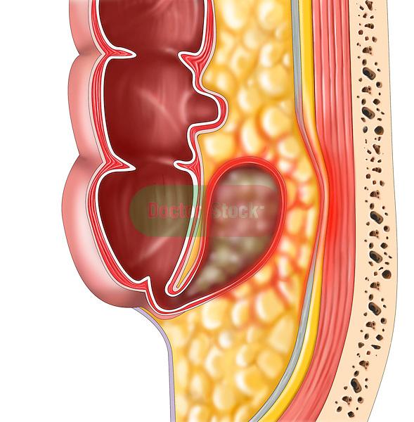 retrocecal swollen appendix