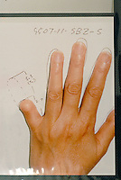 Pictures of hands and fingers operated on at the Hello Tomorrow Clinic in Tokyo, Japan. The clinic specializes in making false fingers to Japanese gangsters, known as the Yakuza, who have had to show allegiance etc by cutting their own fingers off.  The clinic has made and fitted fingers to over 3,000 gang members who need to disguise thier back-ground.<br /> 10-Oct-2006