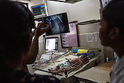 A doctor and a team of nurses check the condition of a  new born baby who is kept under observation at the intensive care unit of the Duncan Hospital in Raxaul, Bihar, India.