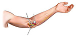 ulnar nerve trasposition; depicts the dissection of the ulnar nerve and its transposition in order to free it from impingement by scar tissue