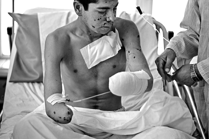 KABUL, AFGHANISTAN - MAY 16.  .18-year-old Shah Mohammad was grazing his sheep when he accidentally detonated a 40 mm grenade that lay on the ground next to him. He was grazing his animals on a firing range called the East River Range used by Bagram Airbase as a training and target practice area. He lost his left hand during this incident. He lost his right hand a few years back from another unexploded ordnance in his village located in Parwan Province north of Kabul, Afghanistan. (Javier Manzano / For The Washington Post).