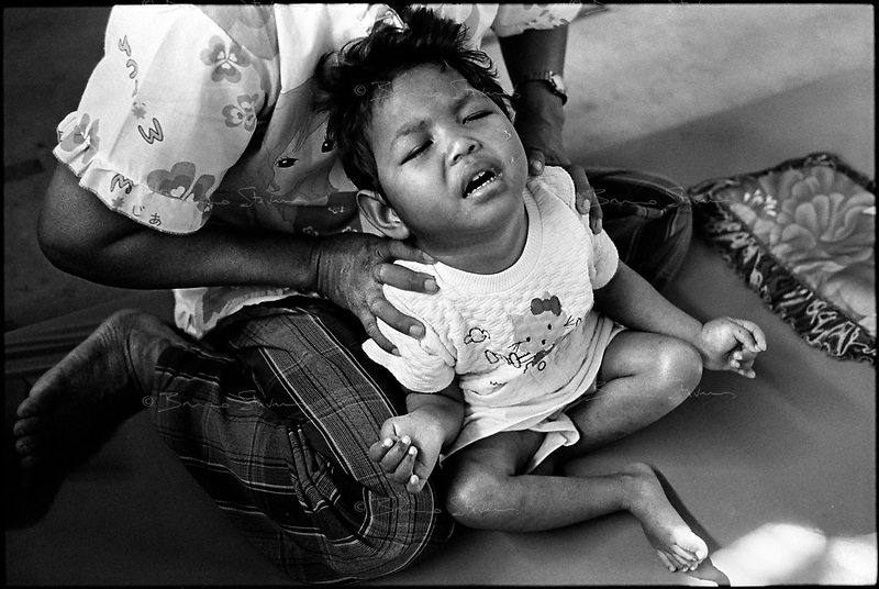 Siem Reap, Cambodia, December 2006..Ni Sahn Poa, 5, suffers from 'level 5 cerebral palsy', a very serious mental and physical condition, usually consecutive to a genetic disorder. She was abandonned next to a church about a month ago. She is being taken care of in the Handicap International clinic.