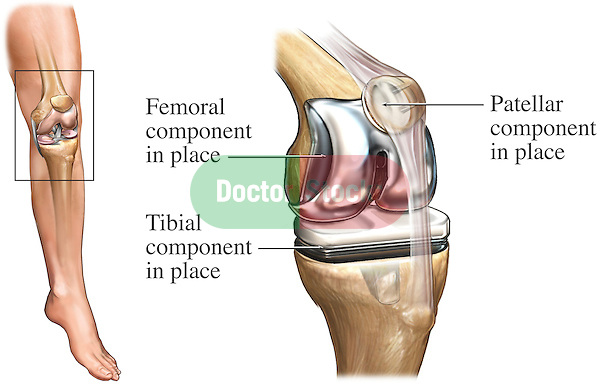 Total knee replacement doctor stock total knee joint replacement surgery athroplasty this illustration features an orientation view of ccuart Choice Image