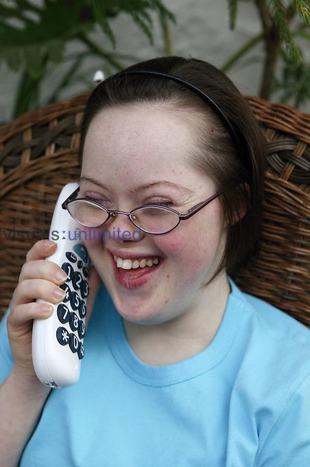 down-syndrome-teenage-girl-jennifer-holland-white-nude