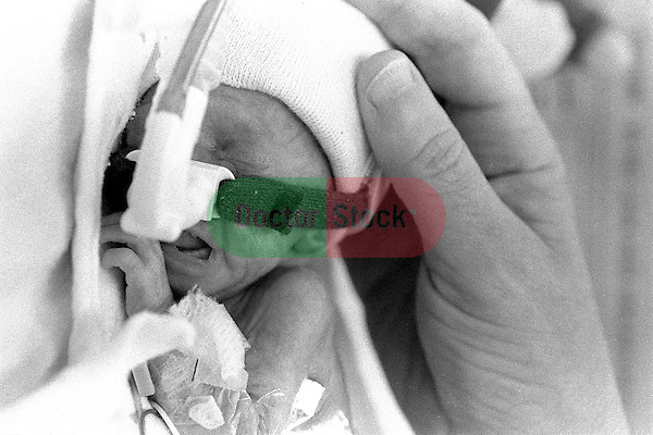 Vertical close-up of adult hand touching tiny, premature baby on oxygen in incubator Baby girl was born 15 weeks premature and weighs 1 pound, 4 ounces