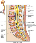 This illustration series depicts the anatomy of the lumbosacral (lumbar and sacral) spine from a mid-sagittal cut-away view with an epidural needle poised outside the skin at the L4-5 interspace. Extensive labels include intervertebral disc, vertebral body, ligamentum flavum, L1, L2, L3, L4, L5, S1, dura mater and arachnoid, cauda equina, cerebrospinal fluid (CSF), spinal cord, supraspinous ligament and intrathecal space.