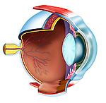 parasagittal section through eye