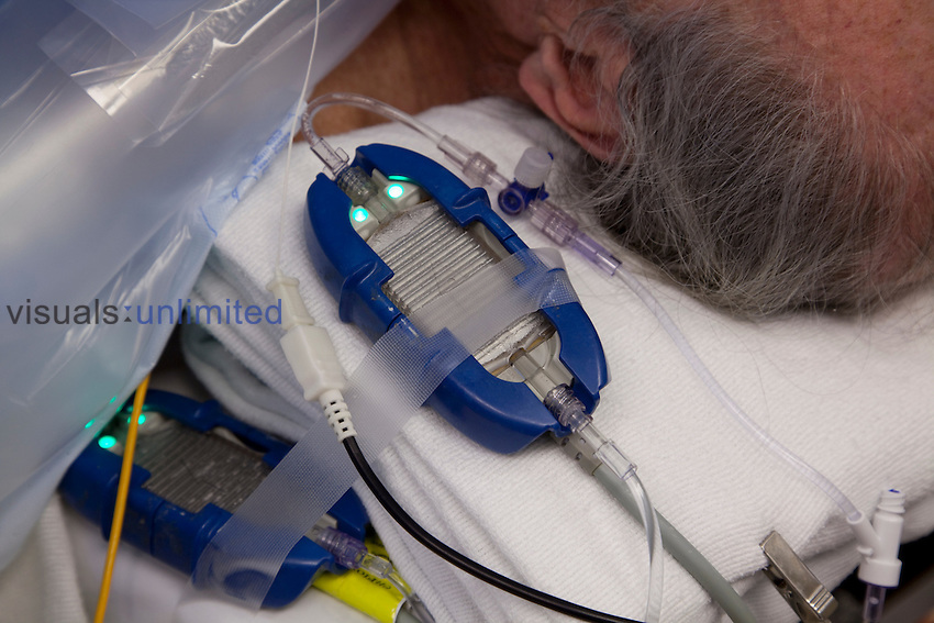 Fluid warmer near a patient's head in the operating room