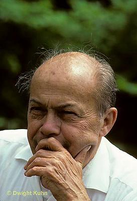 GE01-002z  Genetics - baldness, sex influenced trait